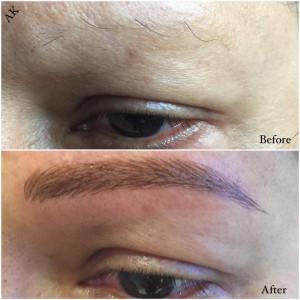 microblading alopecia