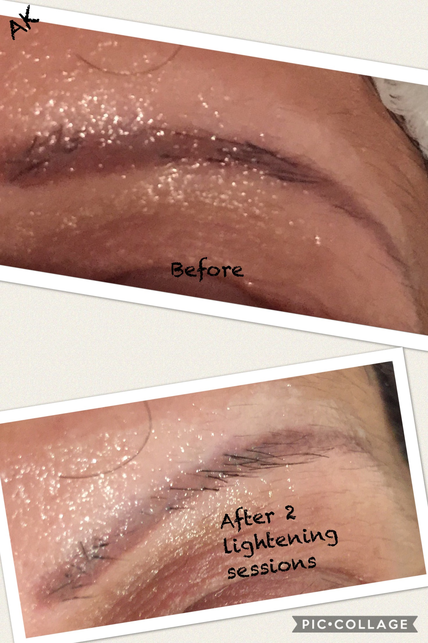 Salt saline tattoo removal for eyebrows