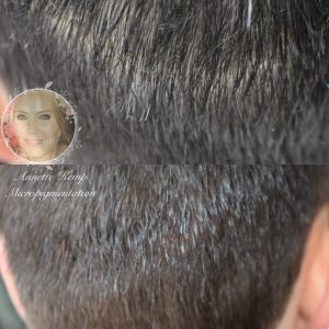 Scalp micropigmentation tattoo