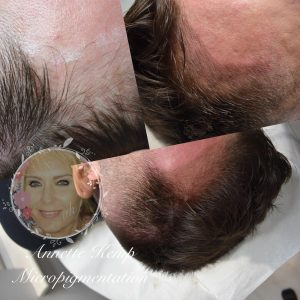 Hair line microblading