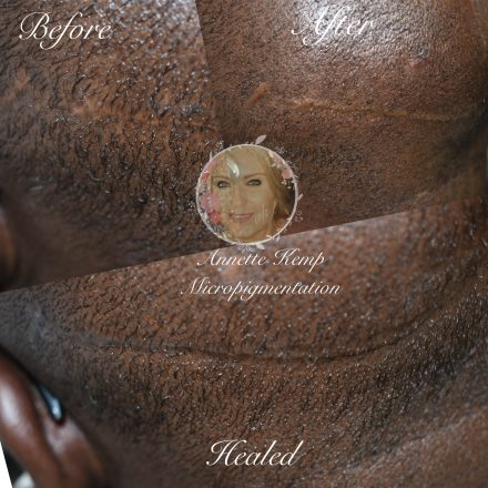 Scar camouflage after hair transplant.