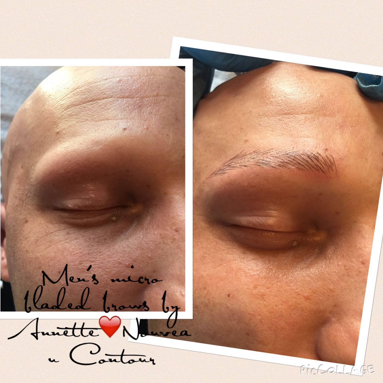 Microblading for alopecia sufferers