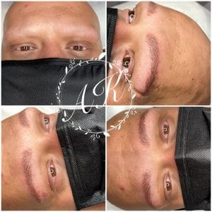 Microblading for male alopeica