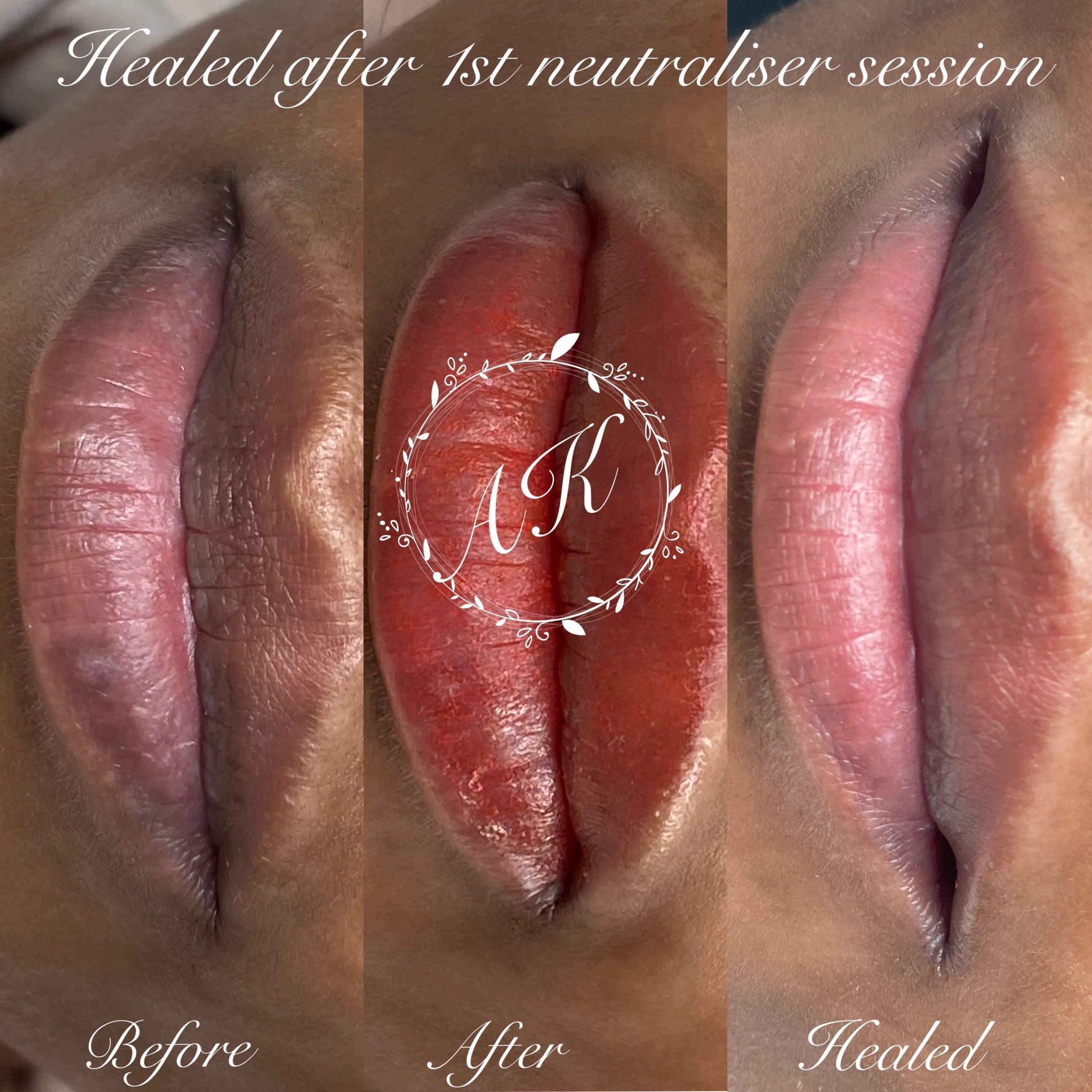 Discoloured lip correction